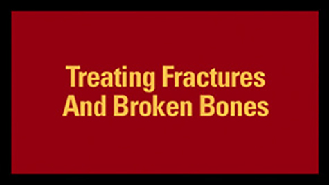 Treating Fractures And Broken Bones